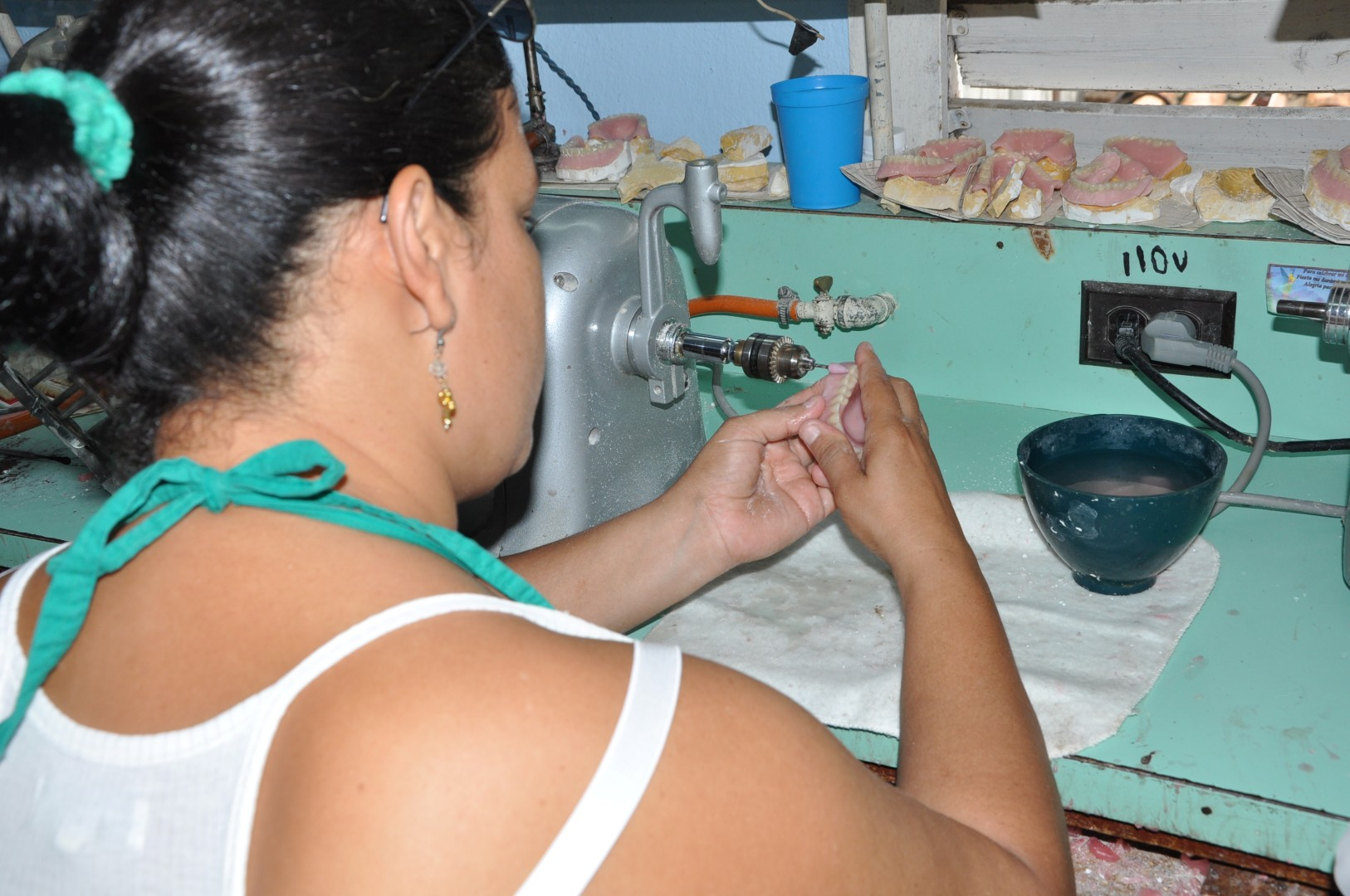 Los servicios de Prótesis y Ortodoncia llevan las marcas del bloqueo de Estados Unidos contra Cuba. (Foto Vicente Brito)