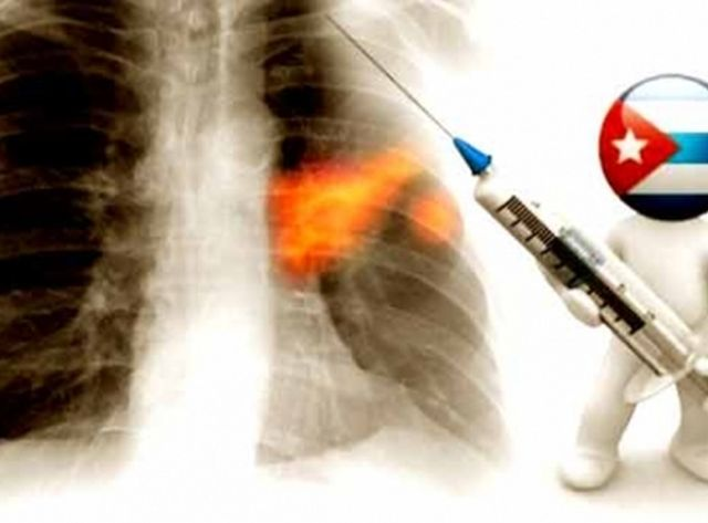 cuba.salud publica, cancer, vacunas
