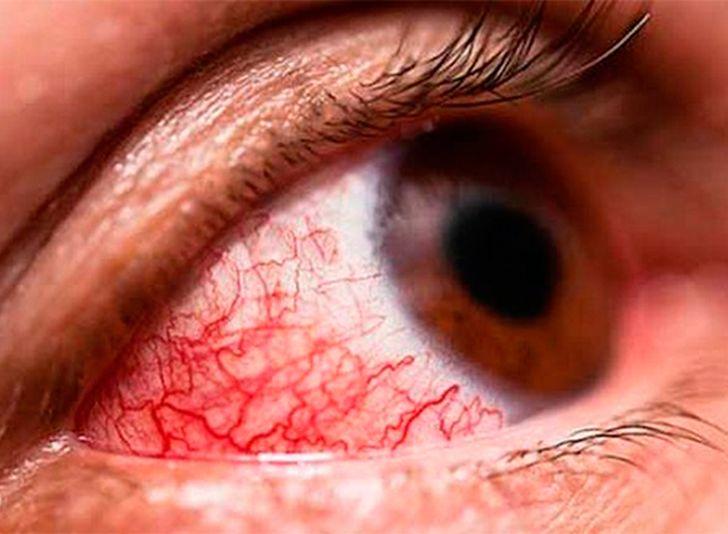 cuba, ministerio de salud publica, conjuntivitis, conjuntivitis hemorragica epidemica