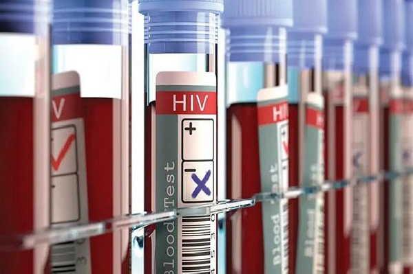 cuba, vih, sida, salud publica